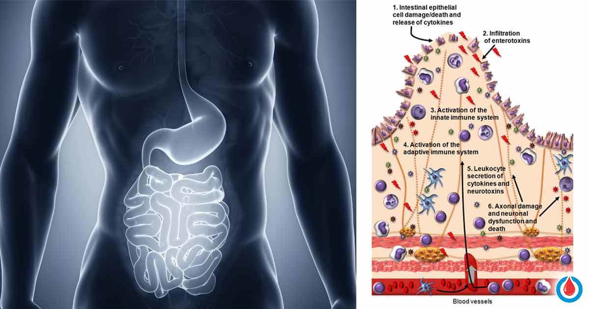 How Does Diabetes Affect The Gastrointestinal Tract Diabetes