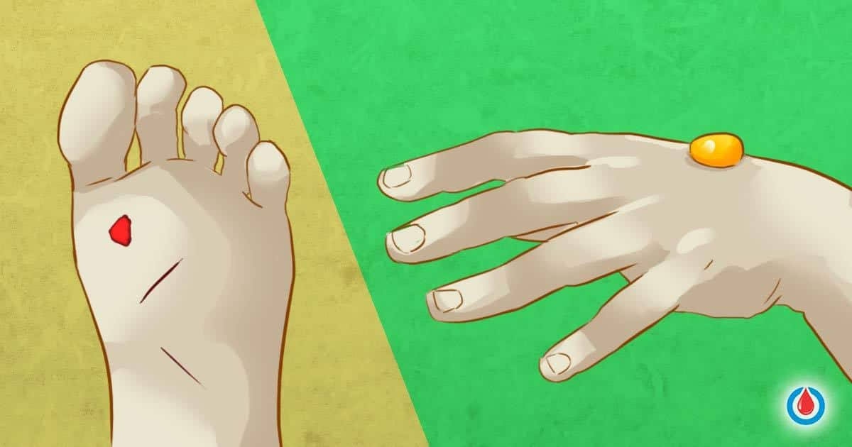 13 Signs of Skin Conditions Caused by Diabetes and How to Prevent Them