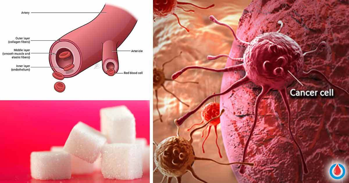 How to Control Your Blood Sugar Levels to Avoid Being Prone to Cancer