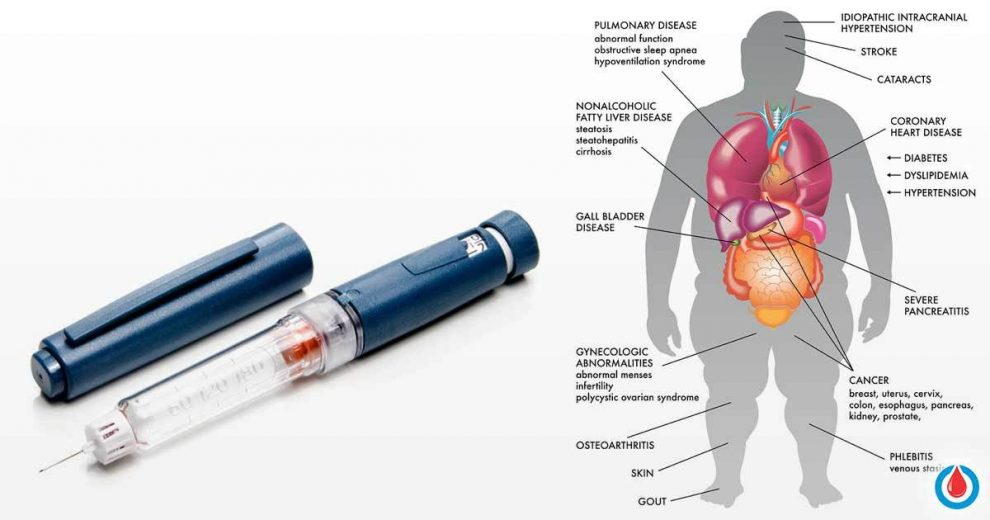Insulin Resistance – What It Is and What to Do About It