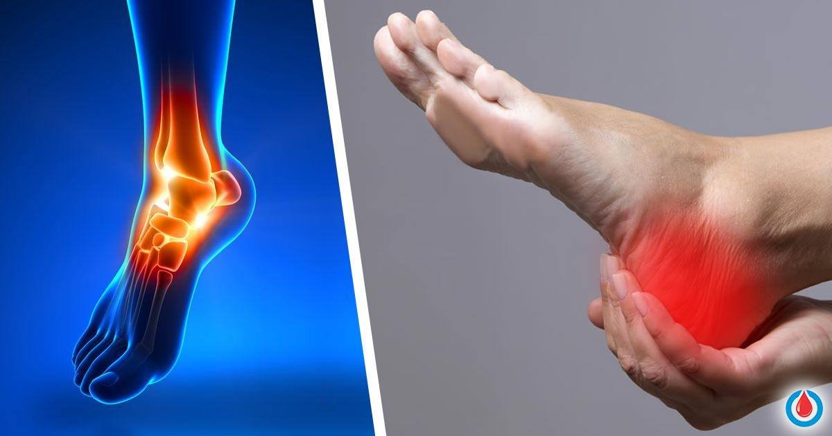 New Possible Treatments for Diabetic Neuropathy Thanks to New Discoveries