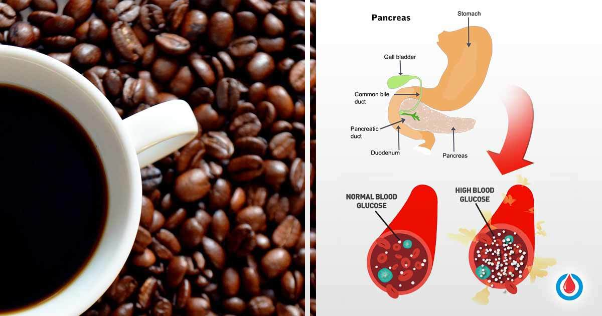 How Does Caffeine Affect Blood Sugar and Diabetes?