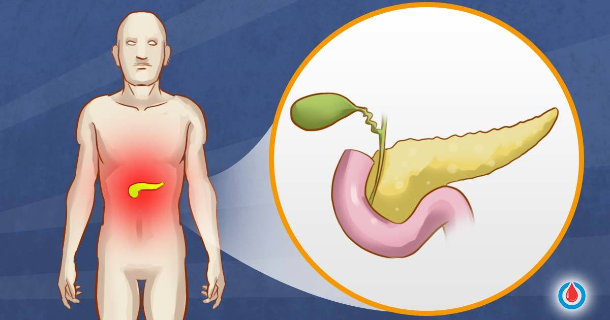 What Role Does the Pancreas Play in Diabetes?