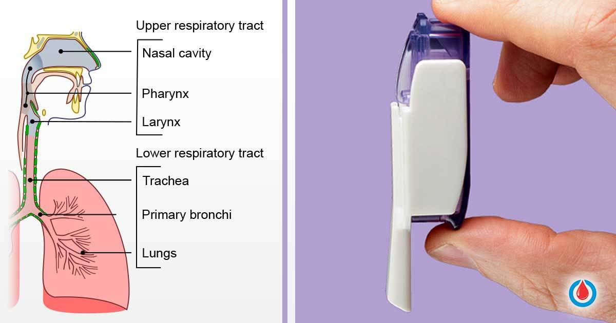 Things You Must Know Before Taking Inhalable Insulin