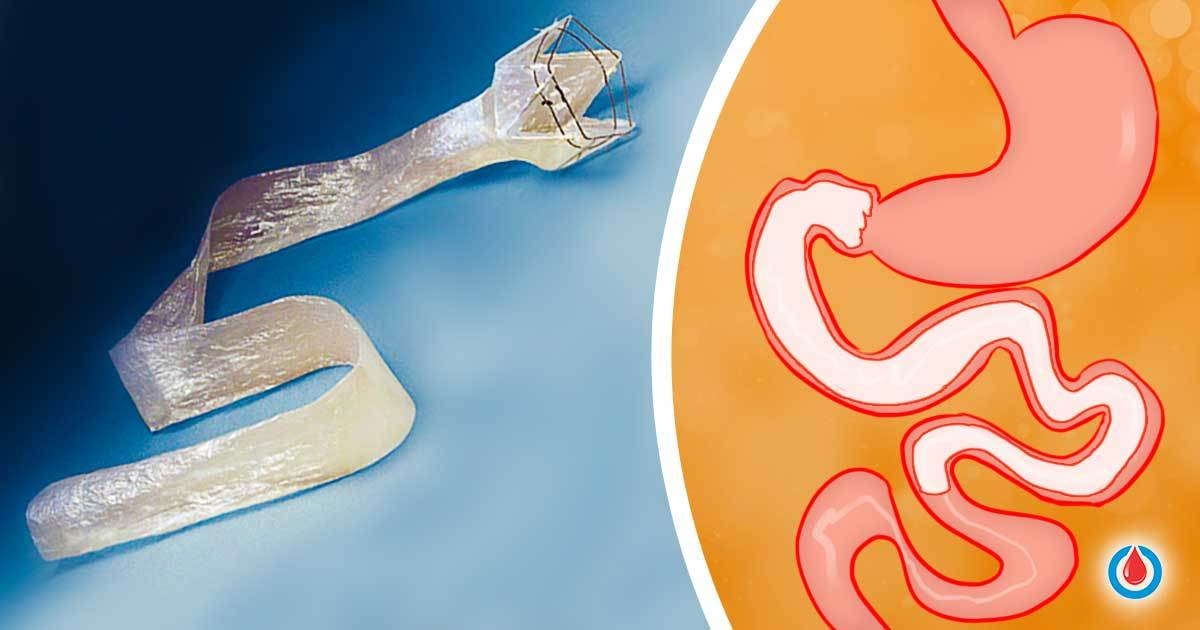 New Revolutionary Procedure with a Potential to Reverse Diabetes