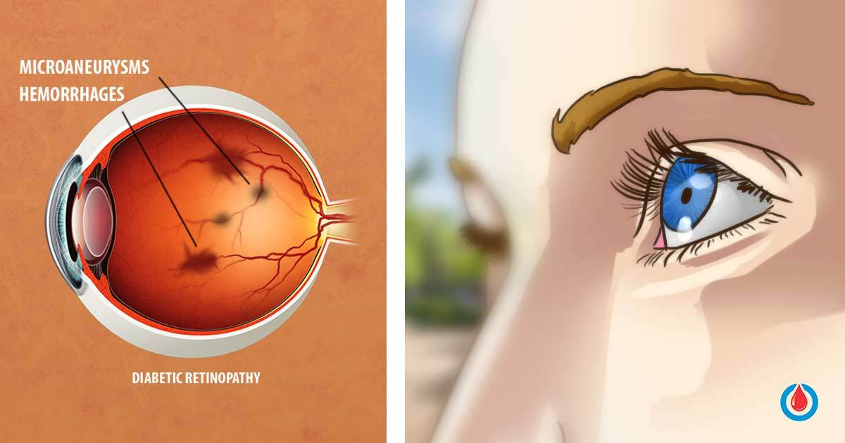 Diabetes and Its Effect on the Eyes - Tips to Protect Your Vision
