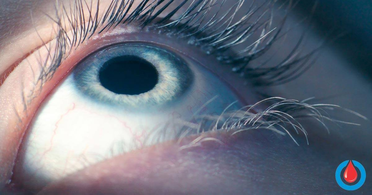 How Artificial Intelligence Can Detect Diabetic Eye Disease