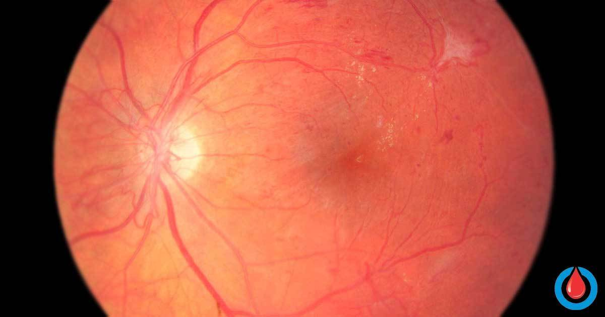 Scientists Recognize a Protein With Key Role in Diabetic Blindness