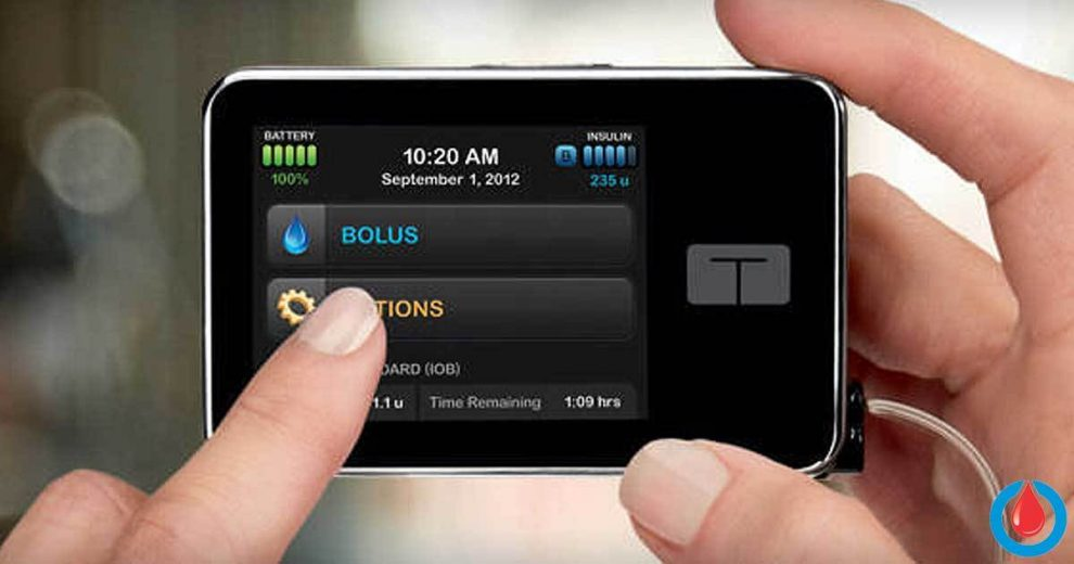 Tandem's Insulin Pump with Integrated Dexcom G5 CGM Offers Free Remote Software Update!