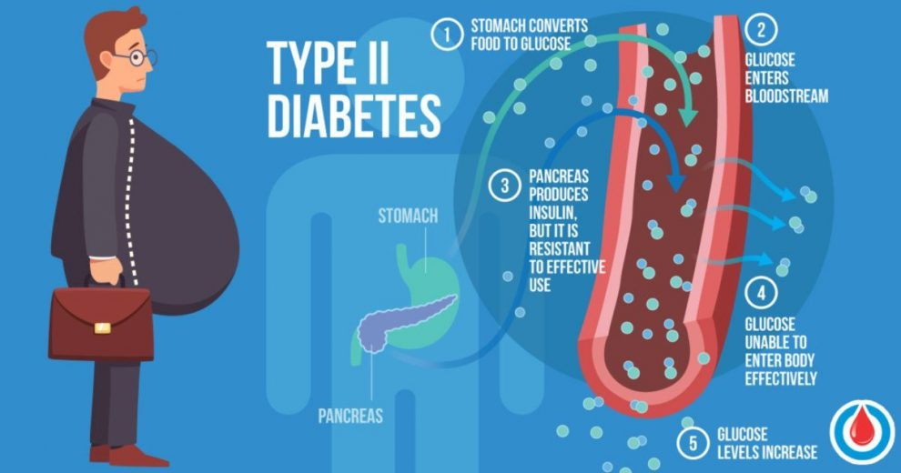 The Link Between Diabetes and Obesity