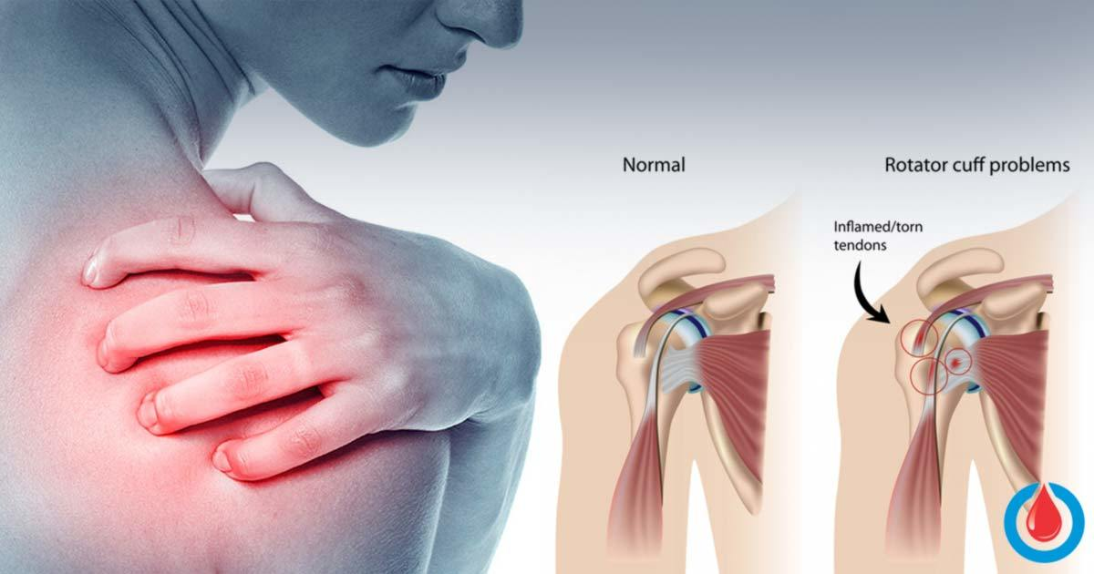 What is a 'Frozen Shoulder' and How to Treat It