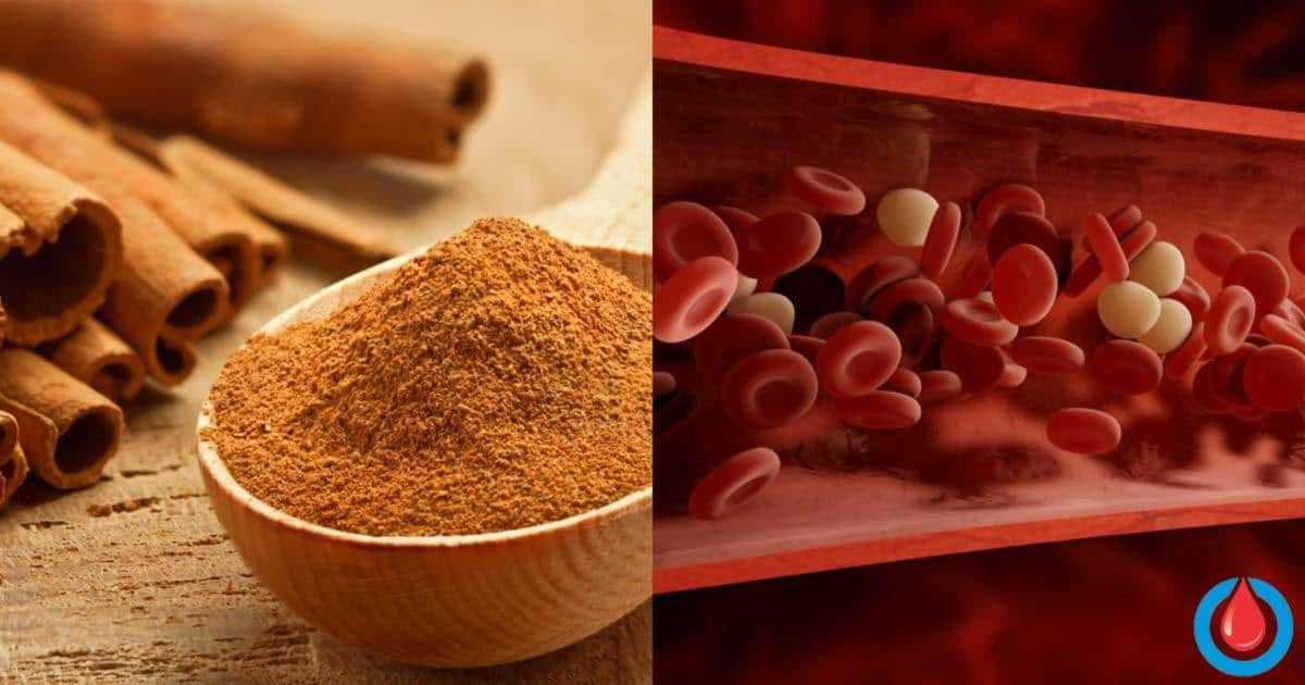 When Should People with Diabetes Avoid Cinnamon