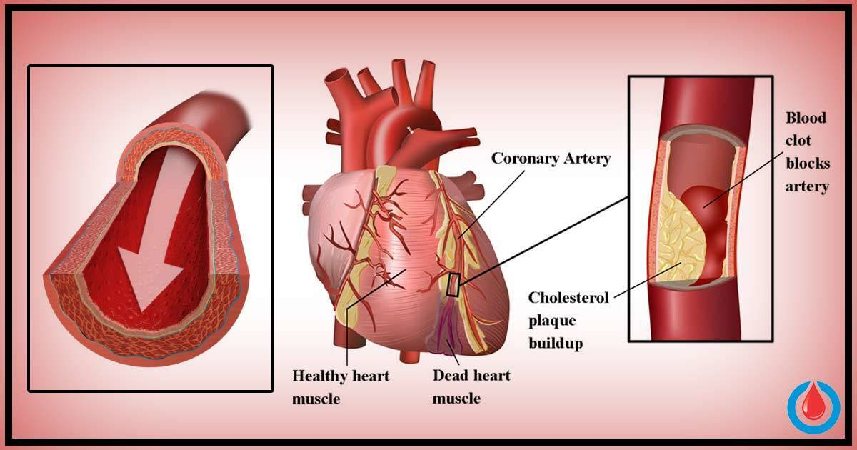 How High Is Your Risk of Heart Attack If You Have Diabetes ...