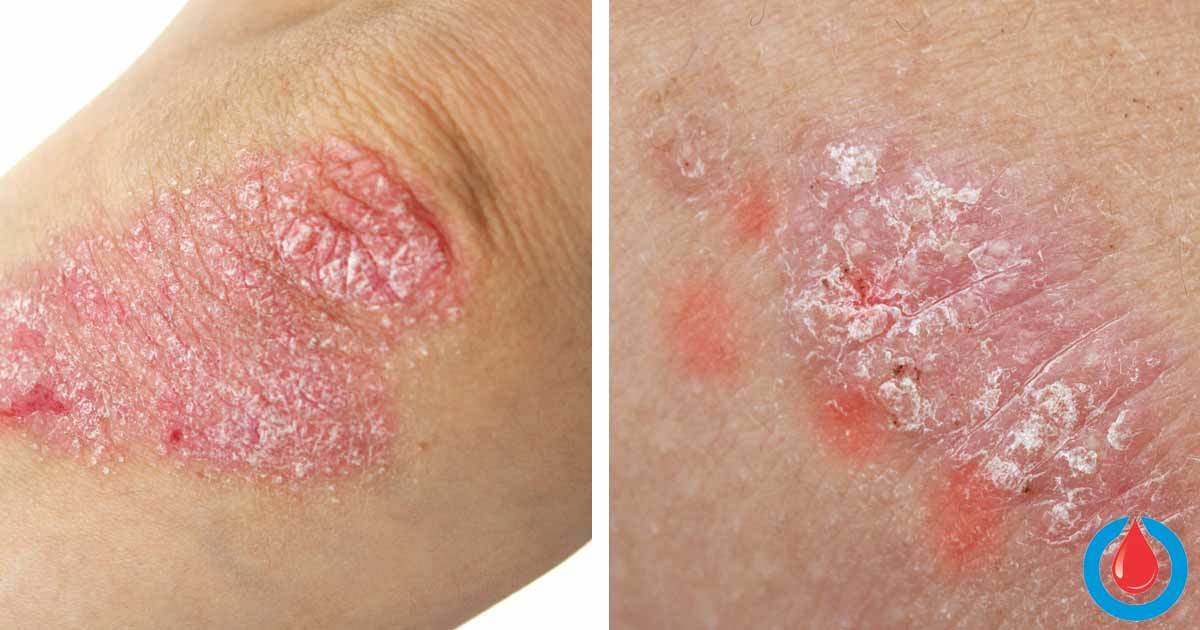 Is There a Connection Between Psoriasis and Diabetes