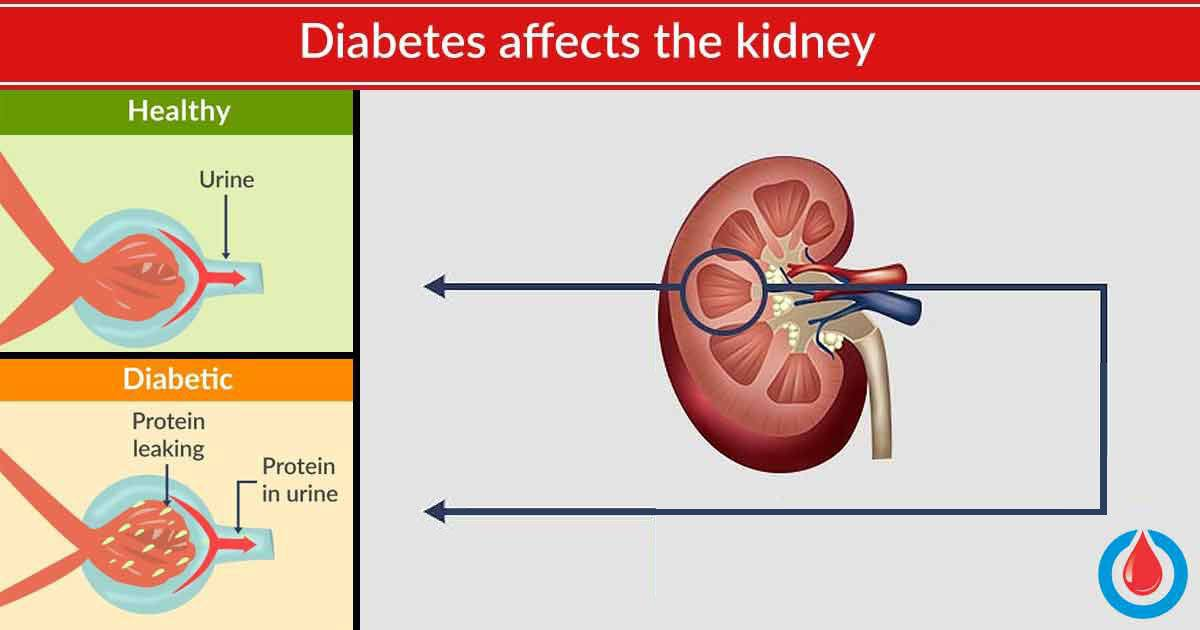 Here's How to Protect Your Kidneys If You Have Diabetes