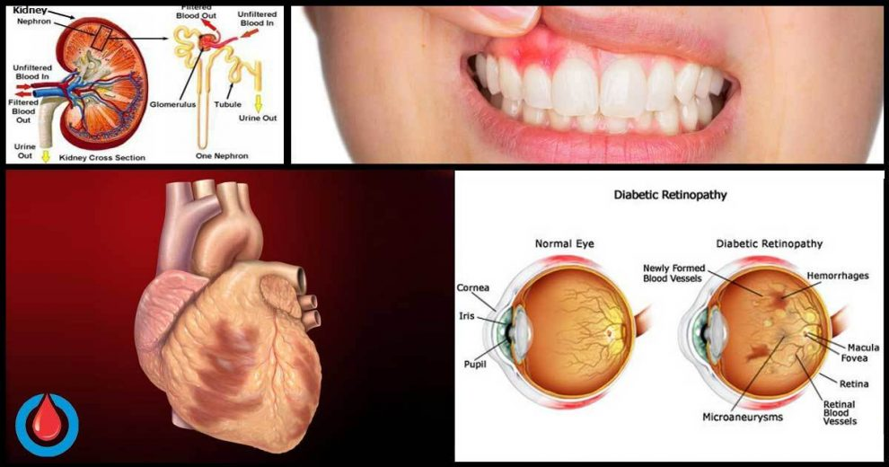 How Persistent High Blood Sugar Affects the Heart, Eyes, Kidneys, Brain, Nerves, and Teeth
