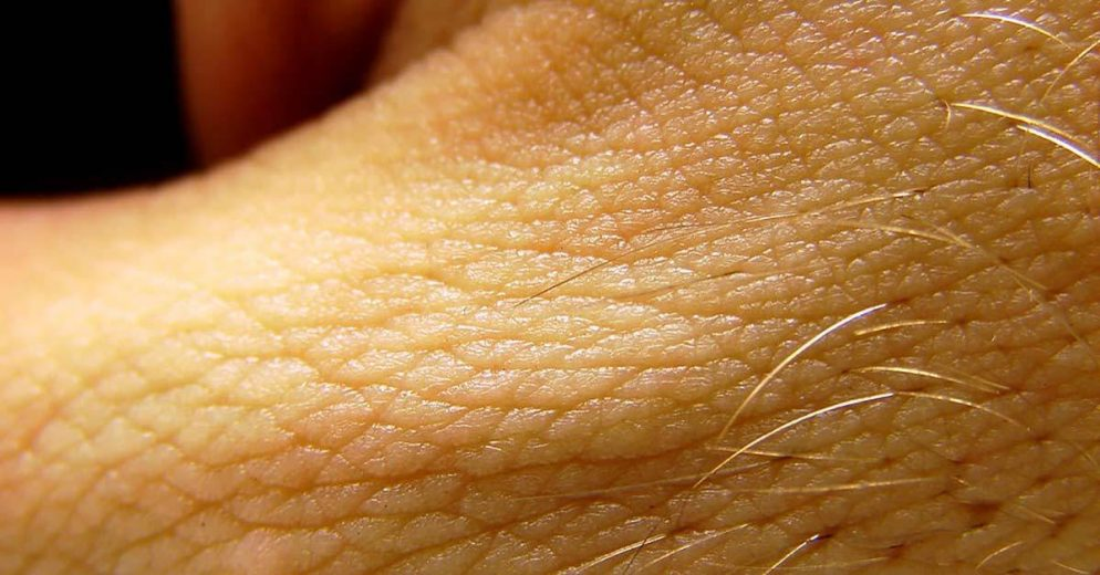 Skin Complications Linked to Diabetes