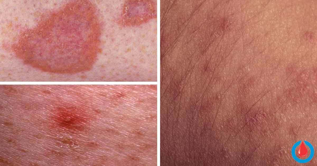 The Most Common Skin Complications Linked to Diabetes