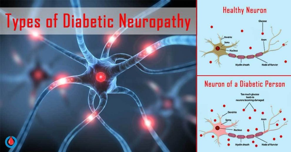 How to Recognize the 4 Types of Diabetic Neuropathy