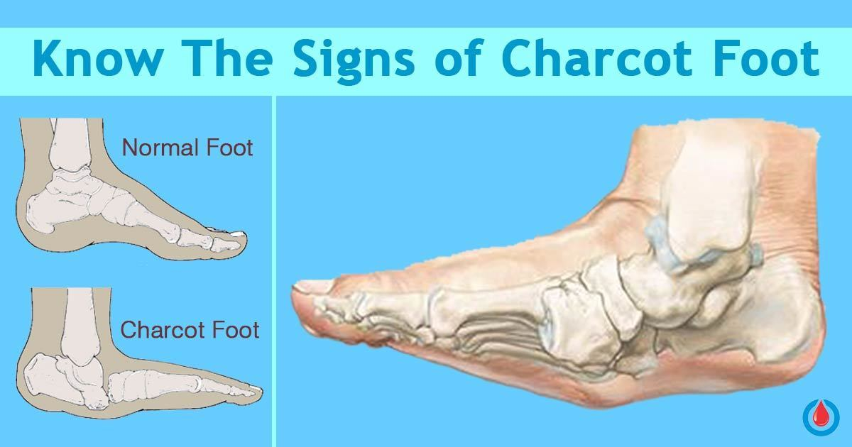Who Is at Risk of Developing Charcot Foot