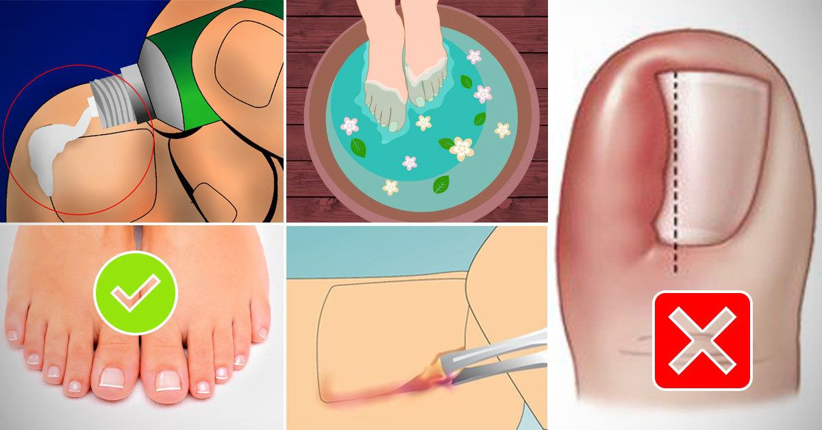 3 Steps to Treat an Ingrown Toenail at Home and Avoid Surgery