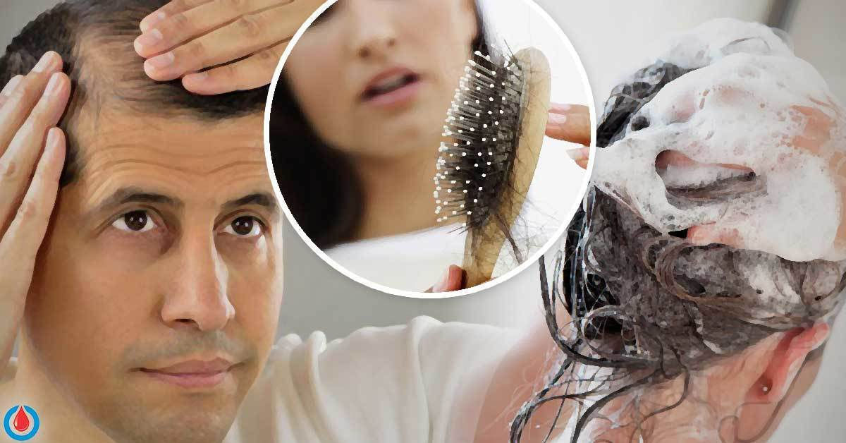 Can Diabetes Cause Hair Loss?