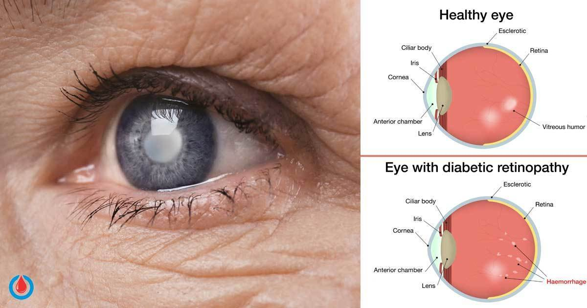 Prolonged High Blood Glucose Can Lead to This Serious Eye Disease