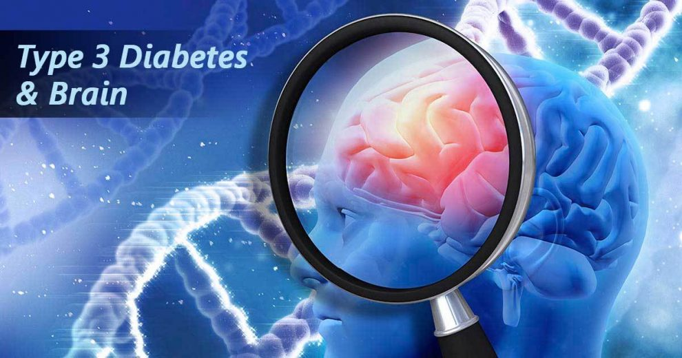 The Link Between Alzheimer's and Diabetes You Must Know