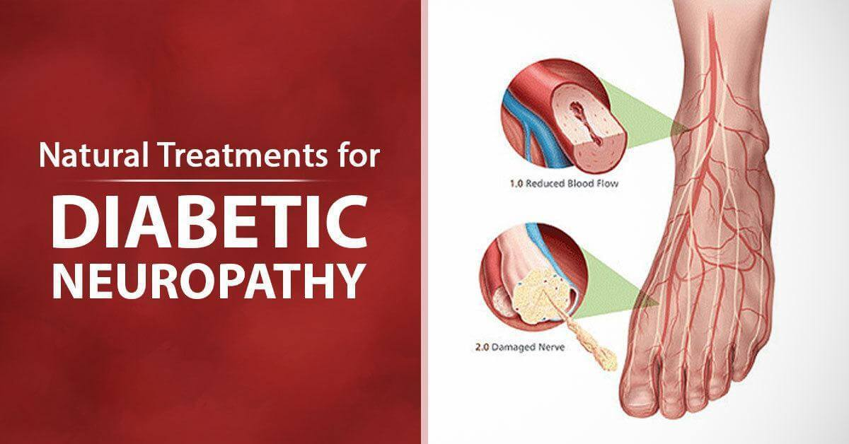 6 Natural Treatments for Diabetic Neuropathy