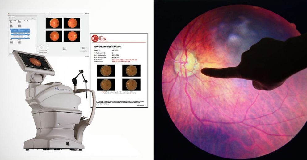 AI Device Gets FDA Approval and Takes Detection of Diabetic Retinopathy to The Next Level