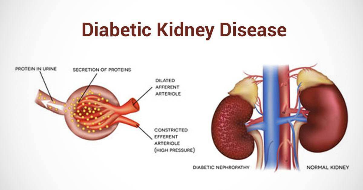 Diabetic Kidney Disease - Signs, Risk Factors and How to Prevent It