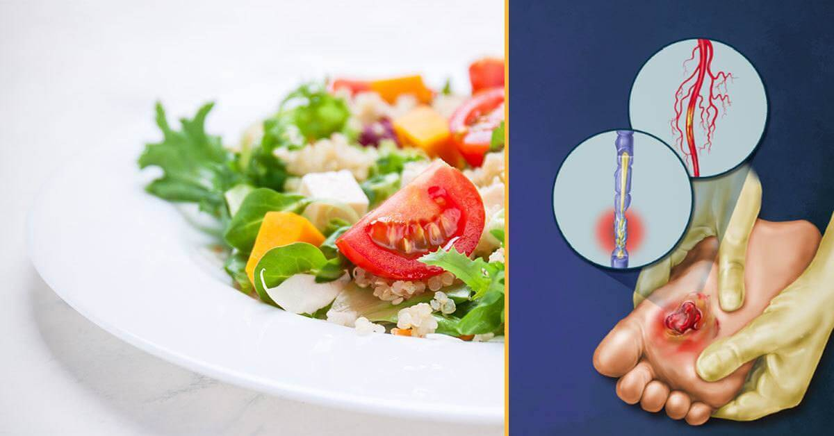 This Popular Diet Could Help Relieve Diabetic Nerve Pain
