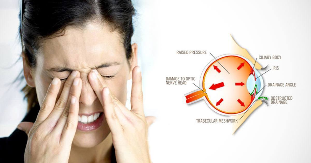 Who's at Risk for High Eye Pressure and How to Reduce It